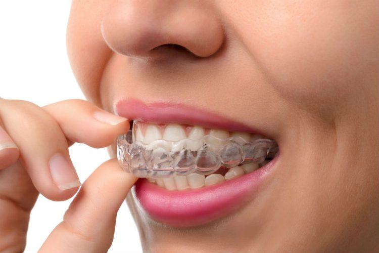 Norburn dental centre dentist burnaby Invisalign