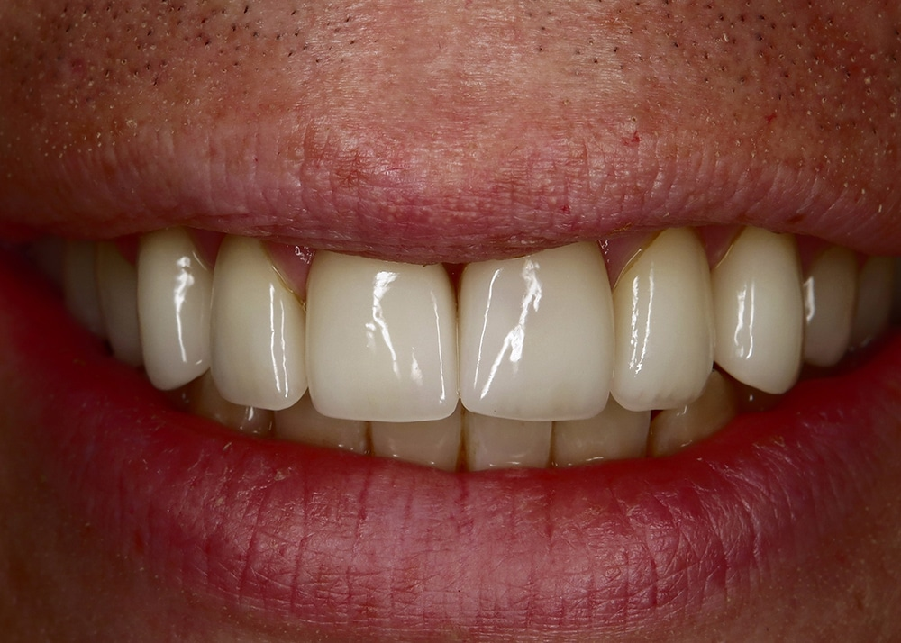 Full mouth smile rejuvenation after