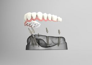 dental implants Burnaby on How All on 4 dental implants work