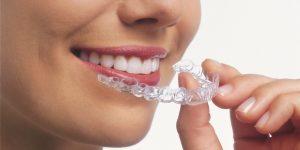 Invisalign norburn dental dentist Burnaby