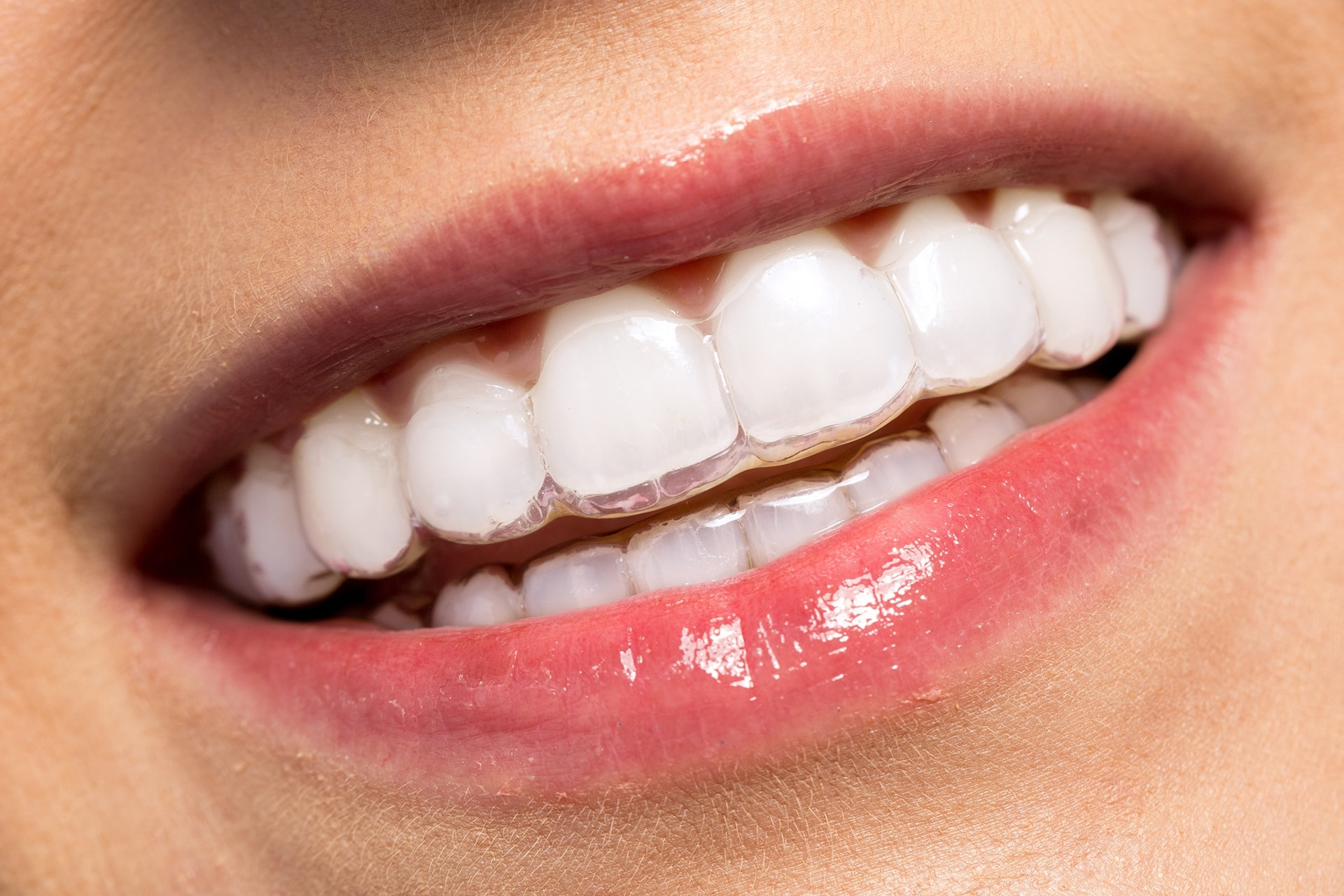invisible braces norburn dental burnaby
