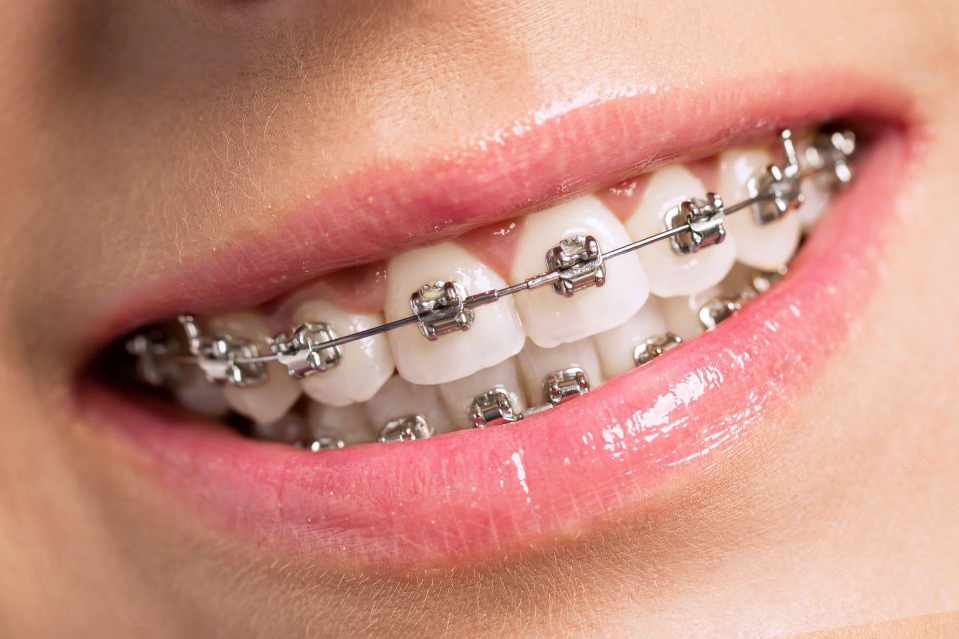 metal braces norburn dental burnaby